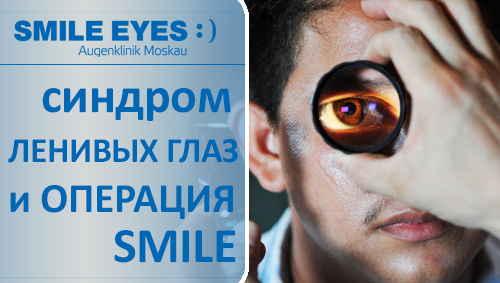 Можно ли делать операцию SMILE при синдроме «ленивых глаз»?