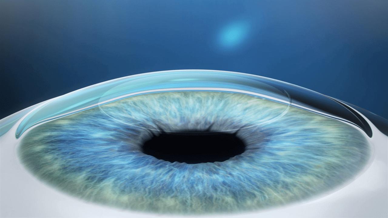 Коррекция зрения ReLEx SMILE - шаг 3